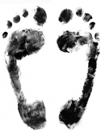 pies desteñidos